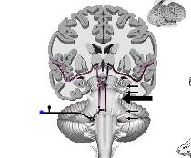 motor) X Vagus (sensory and motor) XI Accessory (motor) XII Hypoglossal (motor) Related Disabilities Brainstem