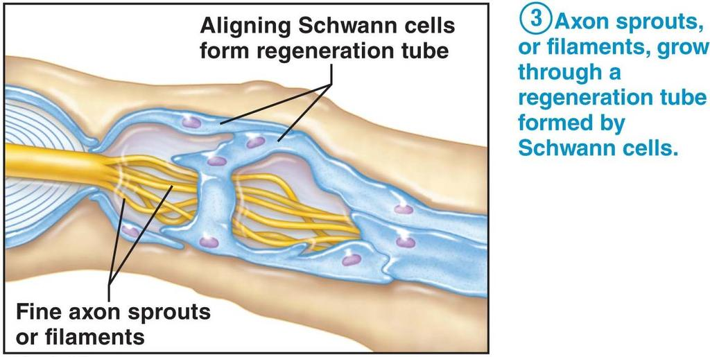 The farther the damage is from the cell body, the more likely successful repair will be made. 3.