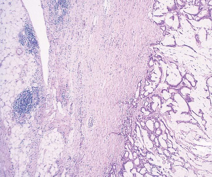 D, Type 4. Tumor cells free in the peritoneum (original magnification 400). The number of slides that included peritoneum ranged from 1 to 7 per case.