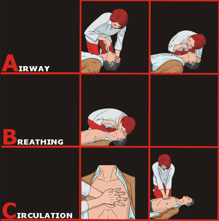 First action in all cases: Check ABCs Airway Breathing Circulation DO NOT leave