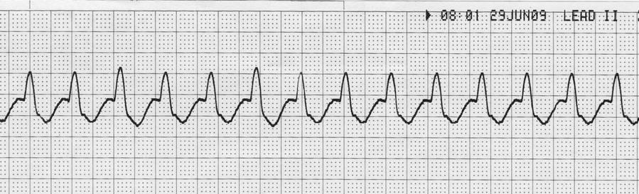 Rhythm: Regular Rate: 150 P Wave: Absent PR Interval: Absent QRS Complex: 0.