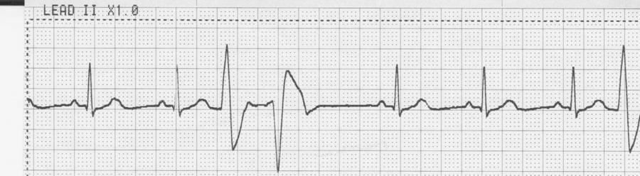 8. Identify the cardiac rhythm / dysrhythmia seen on the following ECG strip. a. Sinus rhythm with bigeminy multifocal PVC b. Sinus rhythm with monogeminy couplet PVC c.