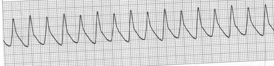 Identify the cardiac rhythm / dysrhythmia seen on the following ECG strip. a.
