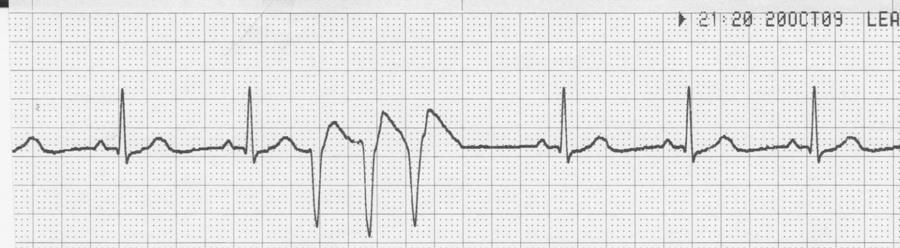 14. Identify the pattern and morphology seen on the ECG strip below. a. Artifact from loose electrodes b.