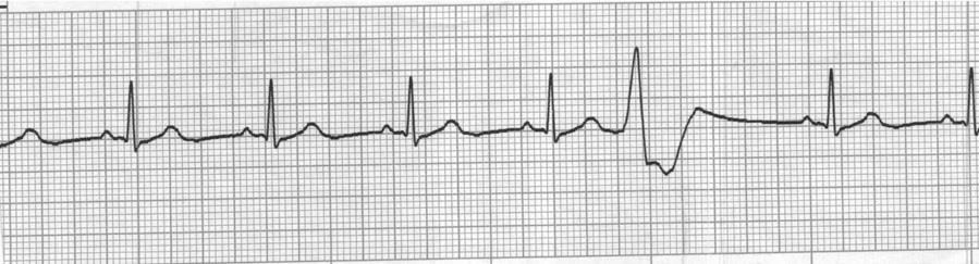 Identify the pattern and morphology seen on the ECG strip below. a. Sinus rhythm with PAC b.
