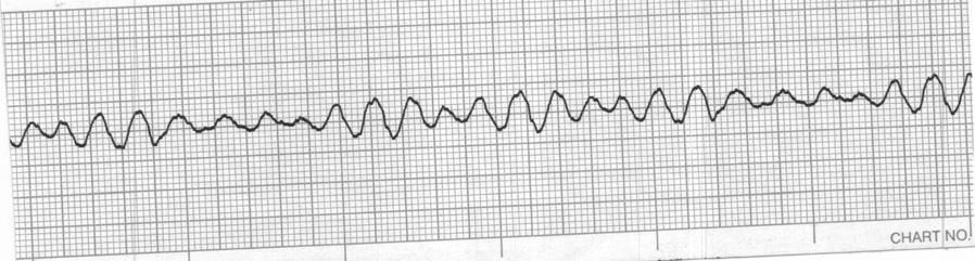 Identify the cardiac rhythm / dysrhythmia seen on the following ECG strip. a. Accelerated idioventricular b. Idioventricular c. Ventricular fibrillation d.