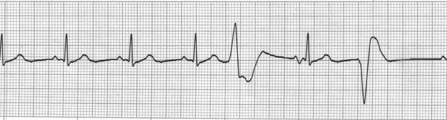 20. Identify the abnormal complexes seen on the following ECG strip. a. Bigeminy PVCs b.