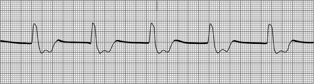 23. How are patients with the dysrhythmia seen in question 22 initially treated? a. Check the patient, call Code Blue, perform CPR and ALS measures, and give cardiac medications b.