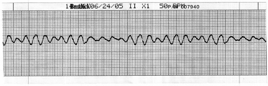 Check the patient, call a Code Blue, terminate resuscitative efforts 24. Identify the cardiac rhythm / dysrhythmia seen in the following ECG strip. a. Accelerated idioventricular b.
