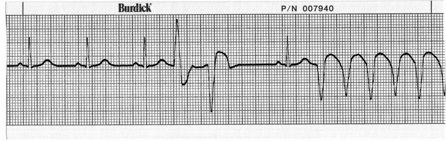 40. What is the first thing you should do when you recognize a dysrhythmia on the patient s heart monitor? a. Call a Code Blue b. Charge the defibrillator c. Check the patient d.