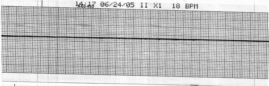 43. Identify the cardiac rhythm / dysrhythmia seen in the following ECG strip. a.