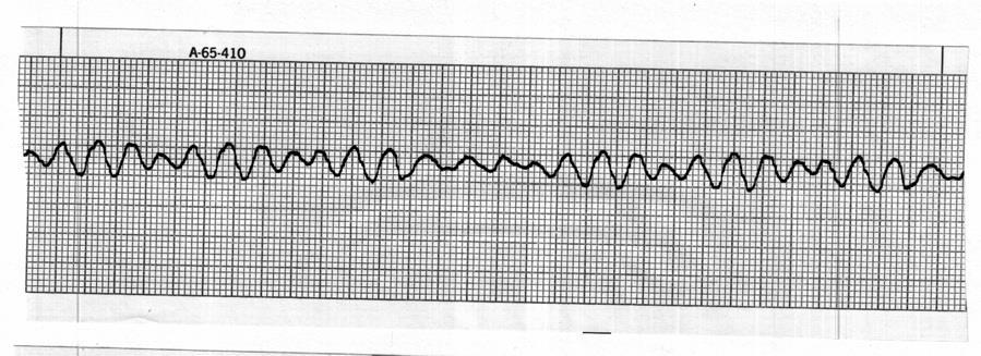 Identify the cardiac rhythm / dysrhythmia seen in the following ECG strip. a.