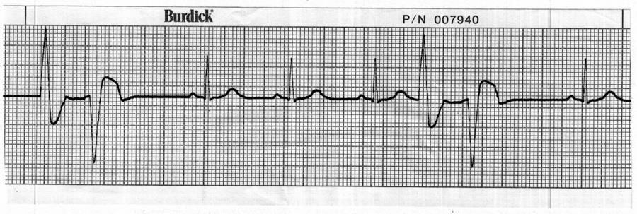 45. Identify the cardiac rhythm / dysrhythmia seen in the following ECG strip. a.