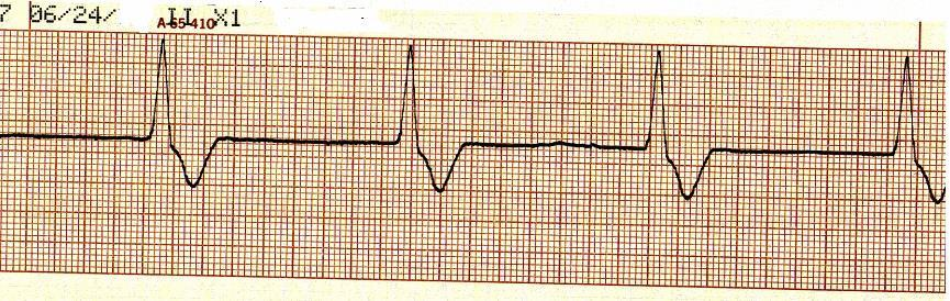 Sinus rhythm with unifocal couplet PVCs d. Sinus rhythm with unifocal quadgeminy PVCs 46.