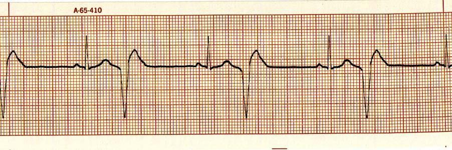 47. Identify the cardiac rhythm / dysrhythmia seen in the following ECG strip. a.