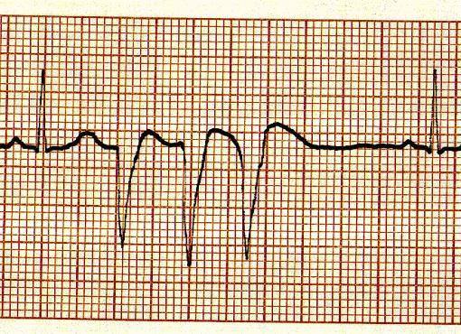 Sinus rhythm with monogeminy multifocal PVCs d. Sinus rhythm with monogeminy unifocal PVCs 48.