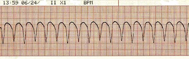 What is the most accurate heart rate in following ECG