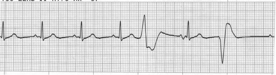 Example 1 Rhythm: Irregular Rate: 70 P Wave: Absent PR Interval: Absent QRS Complex: 0.