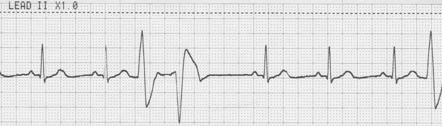 unifocal PVCs Example 2 Rhythm: Irregular Rate: 60 P Wave: Absent PR Interval: Absent