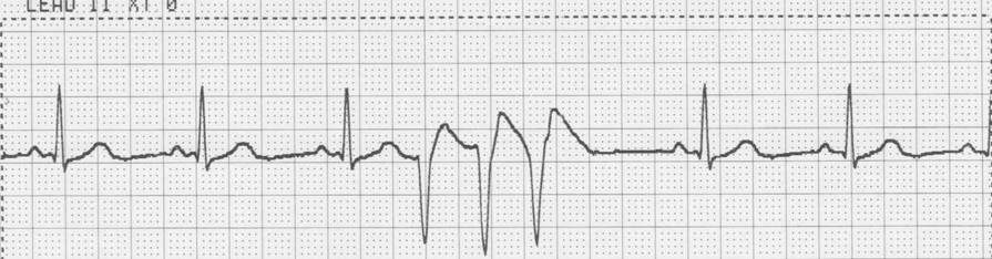 Rhythm: Irregular Rate: 70 P Wave: Absent PR Interval: Absent QRS Complex: 0.