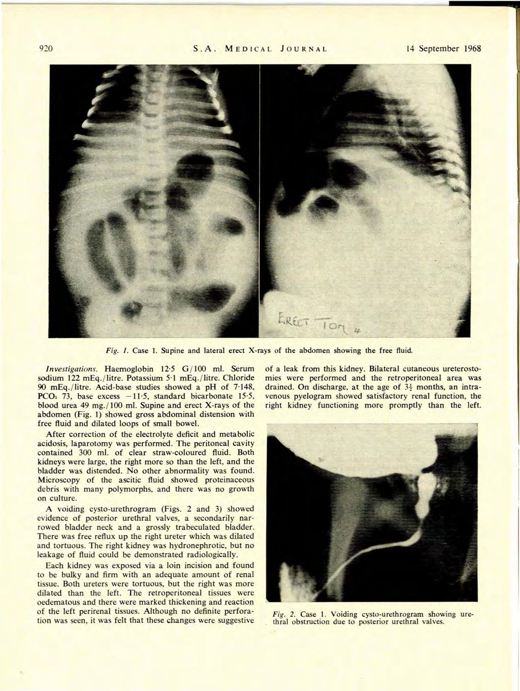 920 S.A. MEDCAL JOURNAL 14 September 1968 Fig. 1. Case 1. Supine and lateral erect X-rays of the abdomen showing the free fluid. nvestigations. Haemoglobin 12 5 G /00 ml. Serum sodium 122 meq./litre.