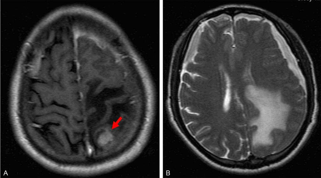 Figure 1. A. Axial T1-weighted imaging with contrast medium demonstrated a well-enhancing mass in the left frontal lobe. B.