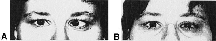 Botulinum Toxin A in the Early Treatment of Sixth Nerve Palsy Induced Diplopia in Type 2 Diabetes Sixth (abducent) cranial nerve palsy is a typical yet infrequent mononeuropathic complication of
