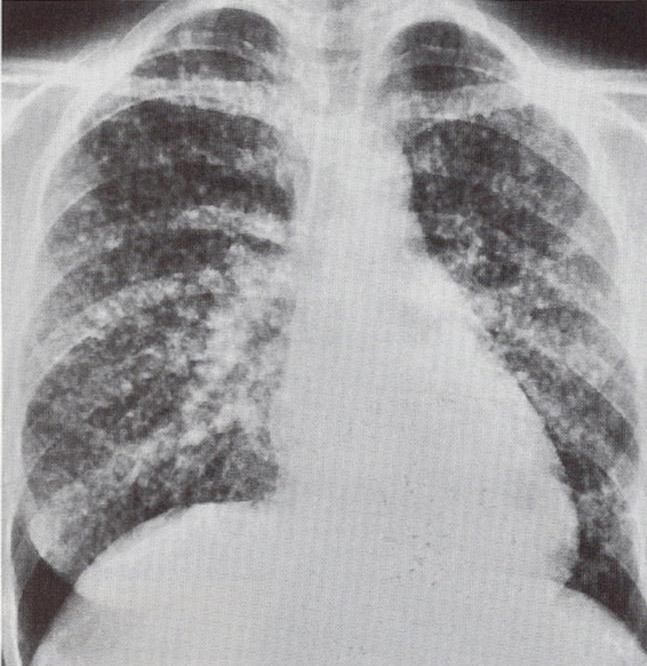 Lung Metastases Breast, GIT- common Any