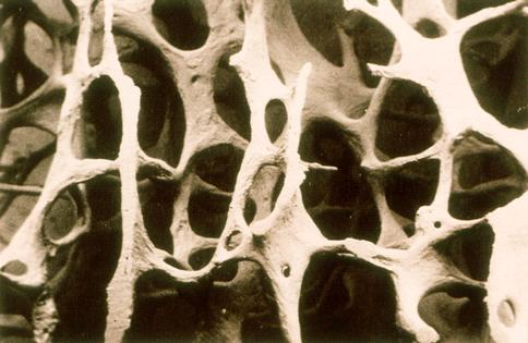 Osteoporosis: Definition A disease characterized by low bone mass and microarchitectural deterioration of bone tissue leading to enhanced bone fragility and a consequent increase in fracture risk