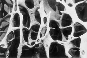 Osteoporosis? A disease characterized by low bone mass and microarchitectural deterioration of bone tissue leading to enhanced bone fragility and a consequent increase in fracture risk.
