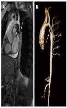 Co arctation with complex heart anomalies Amato s surgical classification of coarctation of aorta Type 1 Primary Aortic