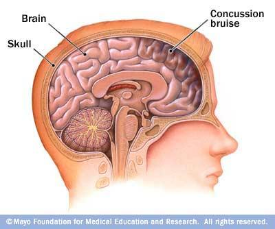 Concussions are usually caused by a blow to the head, which can cause your brain to slam against the inner wall of your skull.