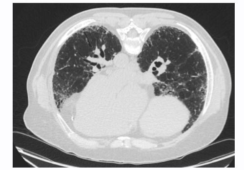 Figure 2. Supine CT Findings Prone CT images are beneficial for evaluating interstitial lung disease and differentiating it from dependent changes found on supine images (Figure 3).