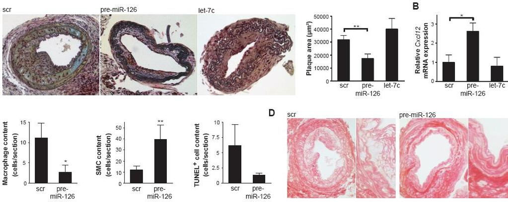 Local transfer of mir-126 limits plaque formation, macrophage content and apoptosis, while increasing CXCL12, SMC and