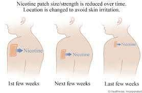 A-Nicotine patches: 1-Transdermal patches have the convenience of a once-daily application and may be most suitable for people in whom the