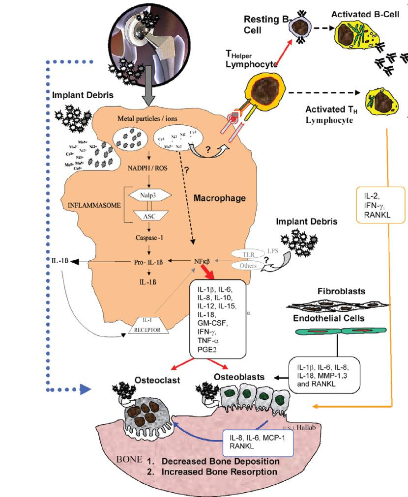 Debris-induced immune activation is primarily mediated by innate immunity = macrophages nonspecific immunity Debris-induced immune