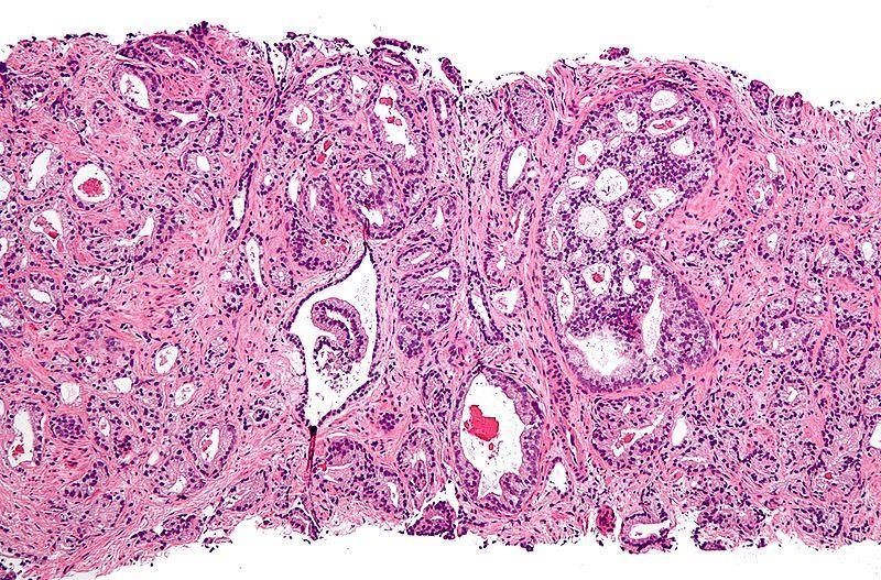 DD Prostatic Adenocarcinoma More homogenous glands Cystic and atrophic patterns uncommon When involving