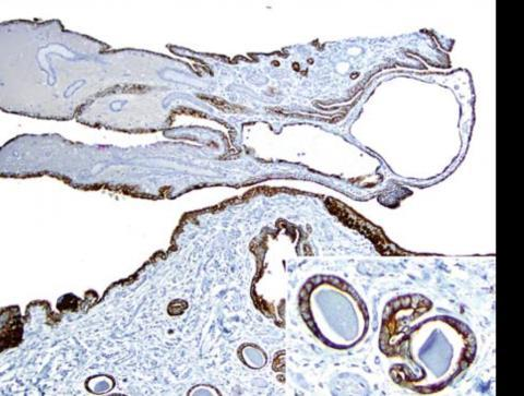 Results A variety of staining patterns were present most common staining pattern: AMACR- /CK903+/p63- Number of