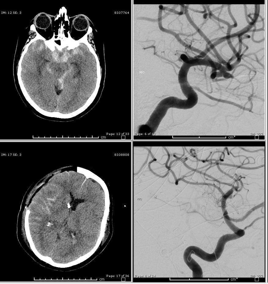 Clipping of aneurysm