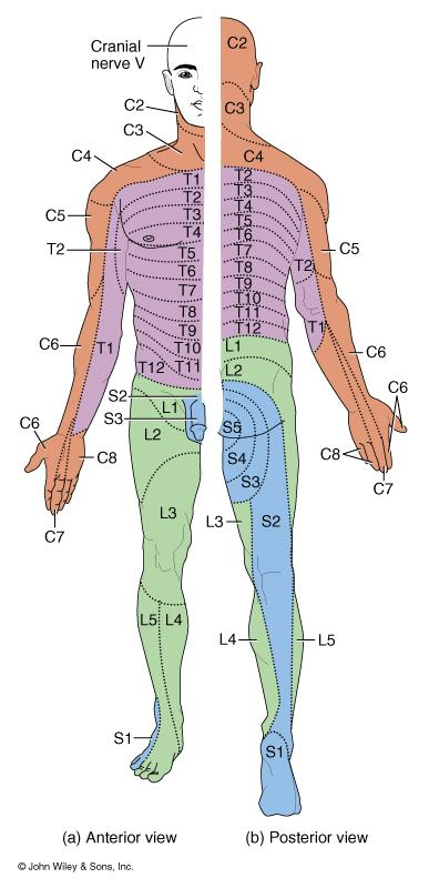 Dermatomes Disorders Damaged regions of the spinal cord can be distinguished by patterns of numbness over a dermatome