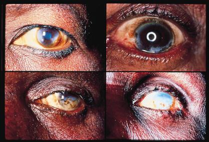 -Worldwide onchocerciasis is second only to trachoma as an infectious cause of blindness -called River Blindness
