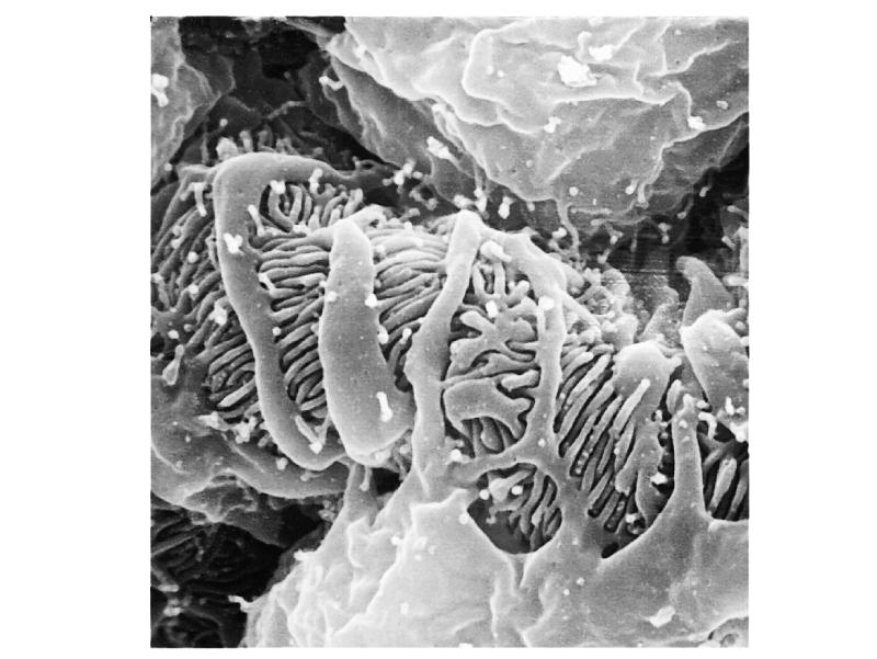 Microscopic Anatomy of Bowman s Capsule Scanning electron microscope picture of the fingerlike filtration slits of the