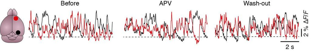Supplementary Figure 13 The glutamate receptor antagonist APV has no effect on impaired slow-wave activity in APP23 PS45 mice.