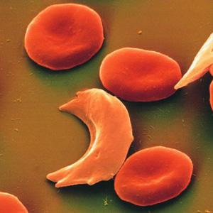 TRANSPORT: Red Blood Cells A genetic disease called