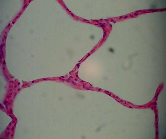 Simple SQUAMOUS Epithelium Refer to