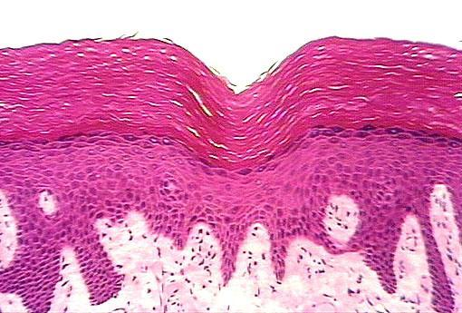 Stratified Squamous