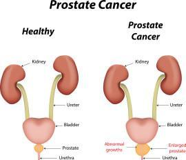 How common is prostate cancer? What causes it? What screening is needed?