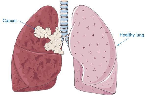 How common is lung cancer? What causes it? What screening is needed?