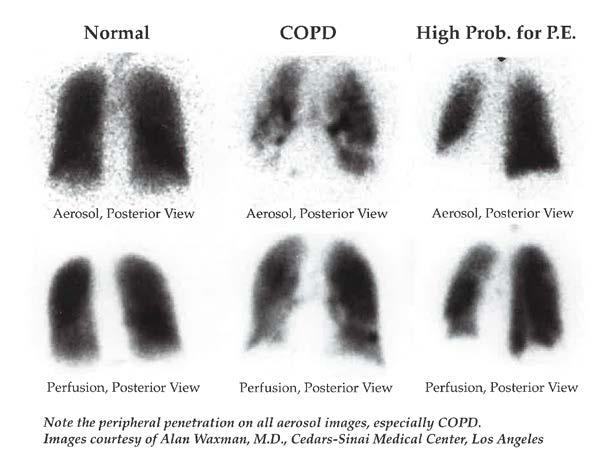 Ventilation-Perfusion Scans Demonstrates contribution of lobes/segments to ventilation and