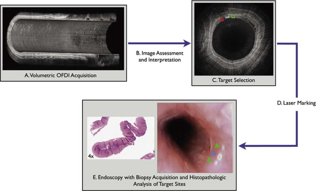 Diagnostics 2014, 4 71 Figure 5. Guided biopsy with the use of laser marking and endoscopic OCT imaging.